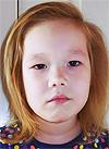 Алиса Байгельдина, 5 лет, врожденный порок сердца, спасет эндоваскулярная операция, требуется окклюдер. 197470 руб.