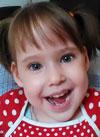 Вероника Лобанова, 5 лет, врожденный прогрессирующий гиперкифоз на почве множественных аномалий развития, требуется операция. 822940 руб.