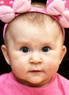 Аиша Незаметдинова, 6 месяцев, врожденный порок сердца, спасет операция. 491000 руб.