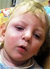 Гриша Воронин, 2 года, детский церебральный паралич, требуется лечение. 199430 руб.