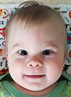 Саша Тупикин, 7 месяцев, деформация черепа, спасет операция, требуется подготовка к ней исаморассасывающиеся пластины. 690000 руб.