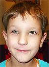 Назар Дюбанов, врожденная двусторонняя косолапость, рецидив, требуется лечение, 88050 руб.