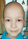 Егор Керов, 8 лет, остеосаркома левого бедра, состояние после ампутации, требуется протез бедра. 78115 руб.