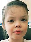 Соня Максимова, 6 лет, врожденный порок развития сосудов, требуется лекарство. 69256 руб.