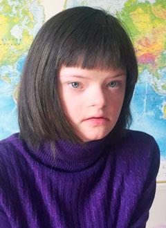 Маша Корзунова, 14 лет, тяжелый врожденный порок сердца, атриовентрикулярная блокада 3-й степени, спасет замена электрокардиостимулятора. 99878 руб.