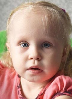 Поля Распопова, 2 года, хроническая почечная недостаточность, кистозная дисплазия почек, спасет трансплантация почки, требуются лекарства. 2621950 руб.