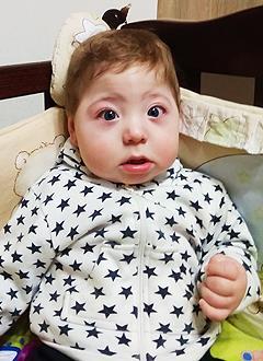 Тимоша Заболотний, 8 месяцев, деформация черепа, спасет операция, требуется подготовка к ней и саморассасывающиеся пластины. 690000 руб.