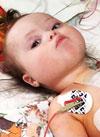 Вера Сомонова, 6 месяцев, тяжелый врожденный порок сердца, атриовентрикулярная блокада 3-й степени, спасет имплантация электрокардиостимулятора. 236305 руб.