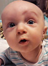 Марк Бирман, 7 месяцев, деформация черепа, требуется лечение специальными шлемами. 180000 руб.