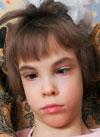 Рита Абдуллаева, детский церебральный паралич, требуется инвалидное кресло-коляска, 257818 руб.